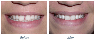 Before and after photos showing closing a gap between teeth